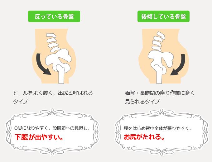 その他にも沿っている骨盤や後傾している骨盤などがあり、それぞれに悩みの症状が異なります。